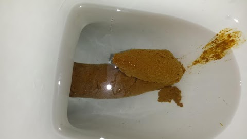Film In Toilet After Bowel Movement