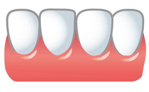2週間後の歯並び裏側矯正 40代からのインビザライン歯科矯正記録