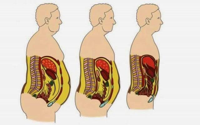Cómo eliminar el colesterol de los vasos sanguíneos y perder peso