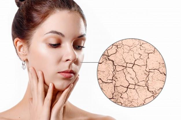 Những điều cần biết để chăm sóc da mùa đông cho từng loại da