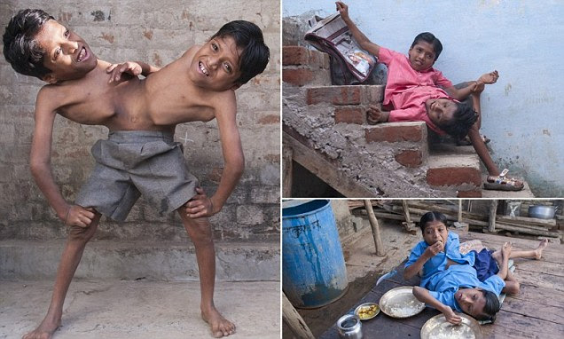 The Indian conjoined twins who are worshipped as a divine incarnation and say they NEVER want to be separated