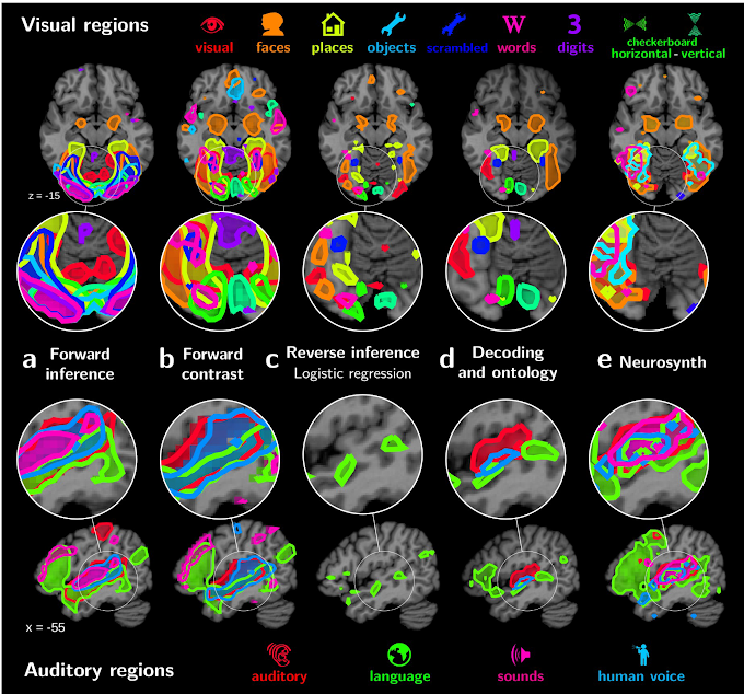 Brain Mapping : Cognition on large-scale