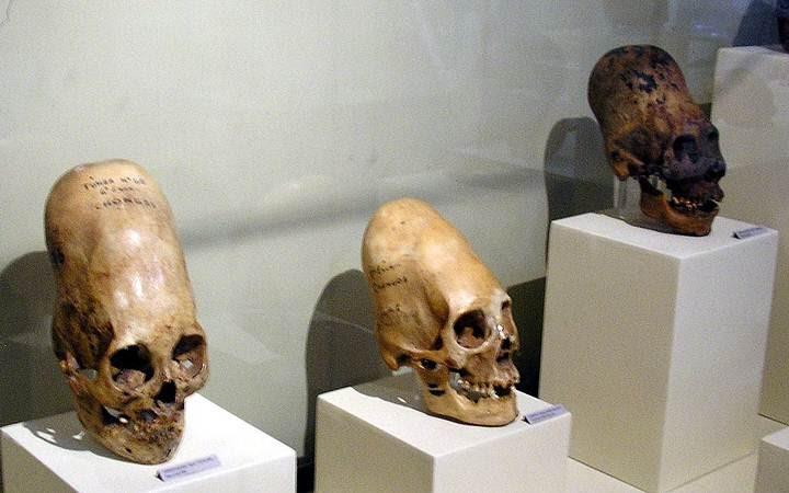 Cráneos de la cultura Paracas.