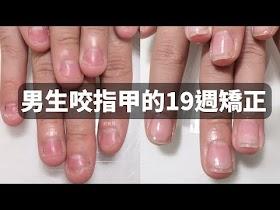 男生嚴重摳咬指甲-矯正指甲19週,改變甲床萎縮、指肉外露的困擾