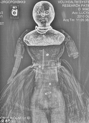 Laid bare: The X-ray image of Lucy Ann