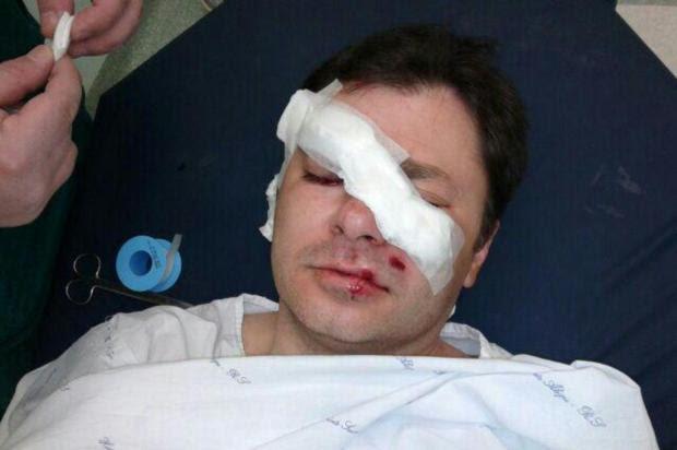 Gremista ferido por bala de borracha em frente à Arena pode ficar cego Arquivo pessoal/Arquivo pessoal