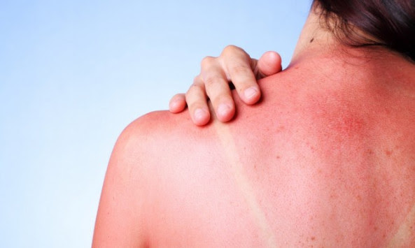Έγκαυμα από ήλιο: Τα σωστά βήματα για θεραπεία και ανακούφιση [vid]
