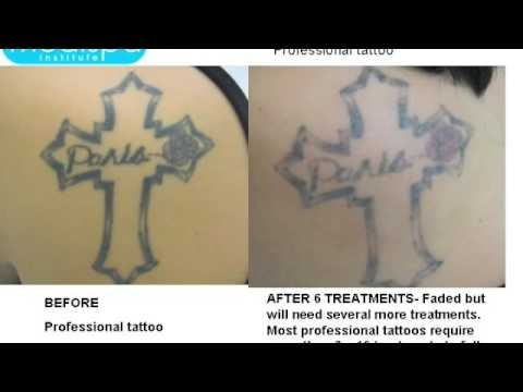 Tattoo removal centers of america chicago reviews best for Dallas tattoo removal clinic reviews
