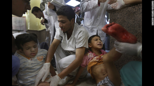 Two children are treated for shrapnel wounds at a hospital on Thursday, August 16.