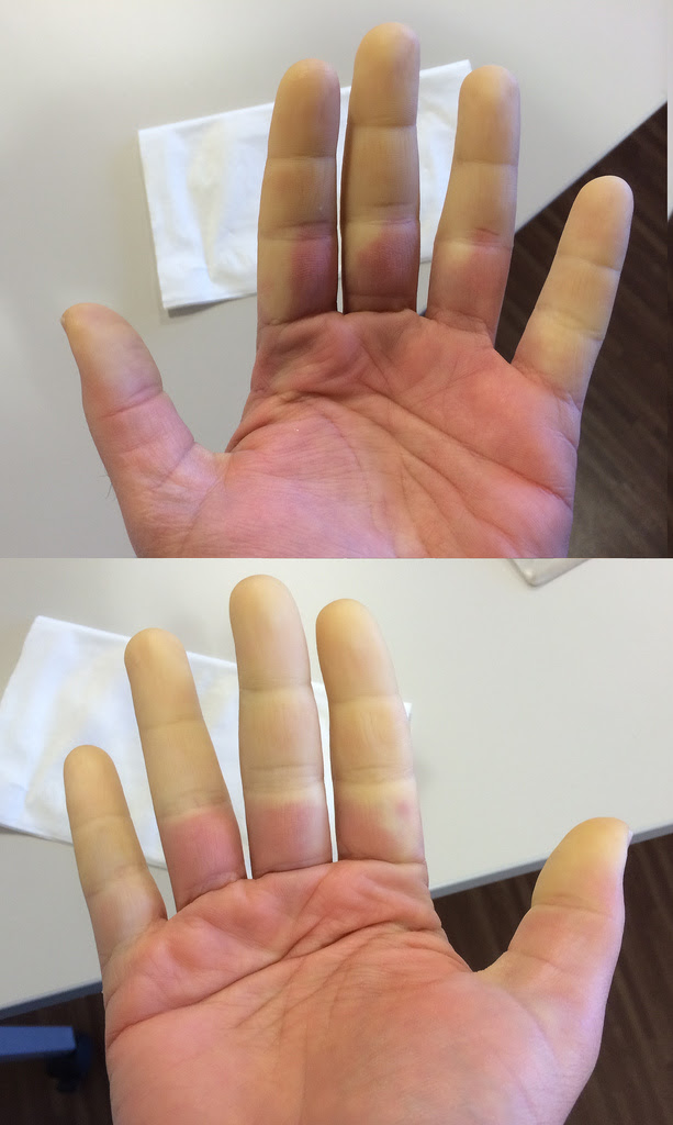This is what Raynaud's Looks Like