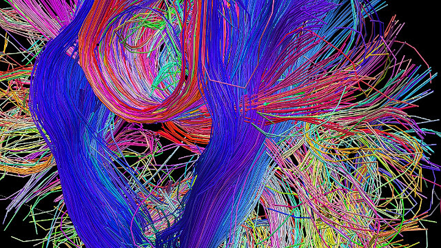 The Human Connectome Project is giving neuroscientists a new perspective on the connections in the brain and how they communicate with each other.<br/><br/>Copyright Laboratory of Neuro Imaging, UCLA and Randy Buckner, PhD. Martinos Center for Biomedical Imaging, MGH. <a href='http://www.humanconnectomeproject.org/' target='_blank'>www.humanconnectomeproject.org</a><br/><br/>