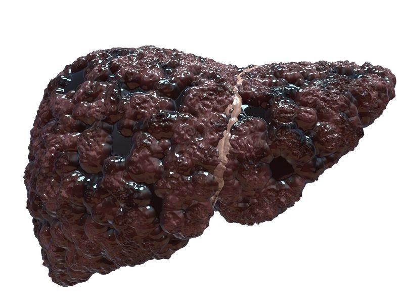 grasa en el hígado cirrosis