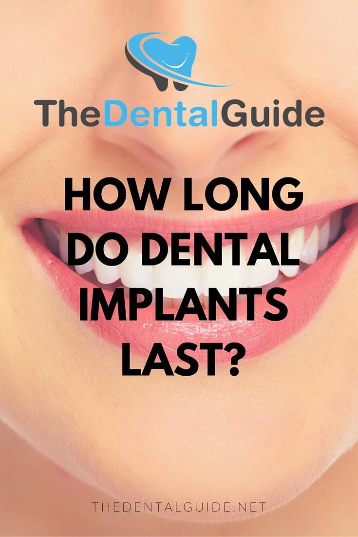 How Long Do Dental Implants Last? - The Dental Guide