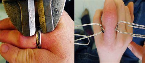 titanium  gold  wedding bands   fingers safety