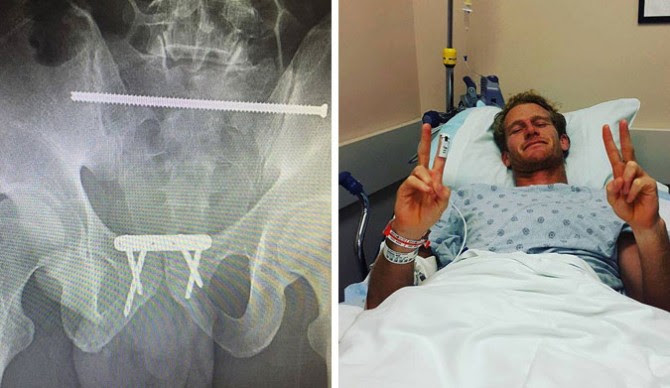 Surgeons inserted a 17 cm rod, a metal plate, and four screws to hold him together. Photos: Facebook