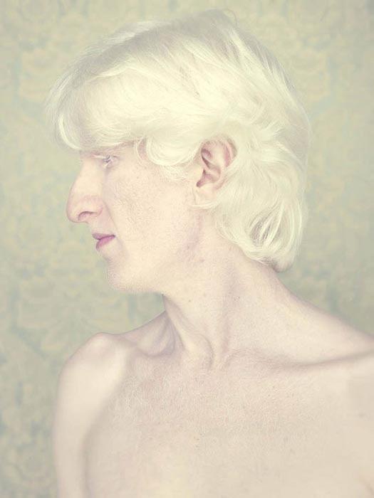 Albino (1)