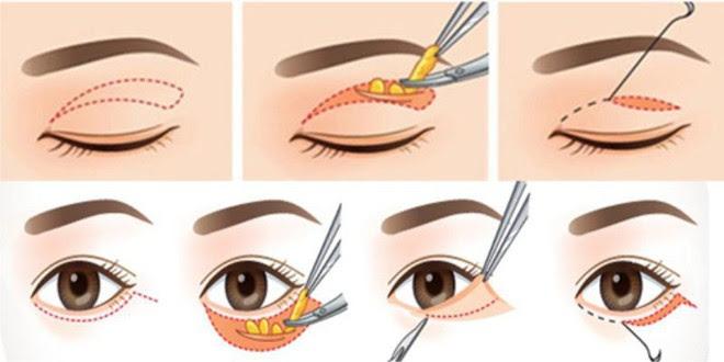 Là tiểu phẫu nhưng cắt mí hay bóc mỡ bọng mắt cũng có thể gây ra những hậu quả nhìn kinh khủng như thế này - Ảnh 6.