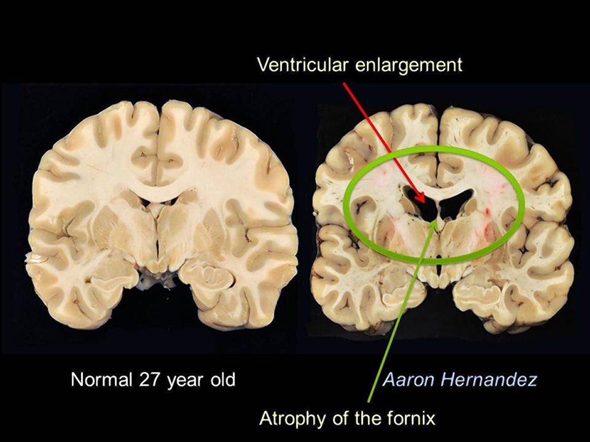 Photos of Aaron Hernandez's Brain Showing Significant CTE ...