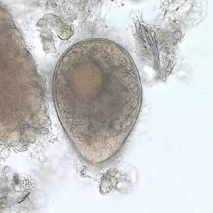 colanții varicoase ale bărbaților dieta cu tratarea venelor varicoase