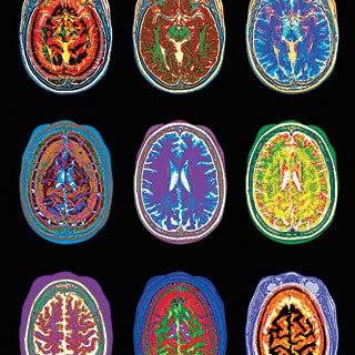 Five Ways Brain Scans Mislead Us - Scientific American