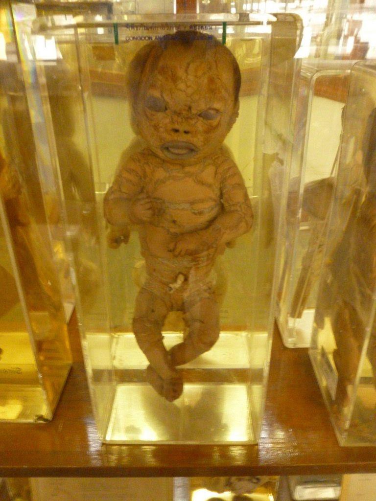 Harlequin baby.