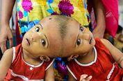 Nasib Rabia dan Rukia, Bayi Kembar Siam Menyatu di Kepala...