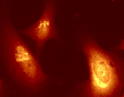 HeLa cells permeabolized by Triton X-100
