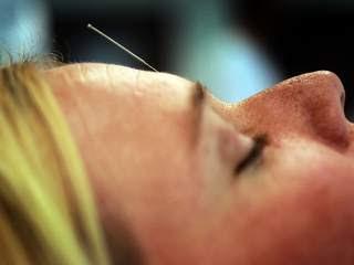 Acupuncture_20120910091734_JPG