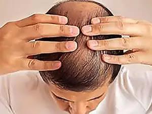 Simple Trick Regrows Hair In Weeks. Try It Tonight