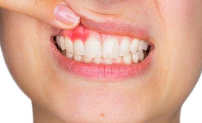 Diş eti çekilmesi nedir dişleri gıcırdatmak ve sıkmak sebep oluyor! | Beklentiler.com