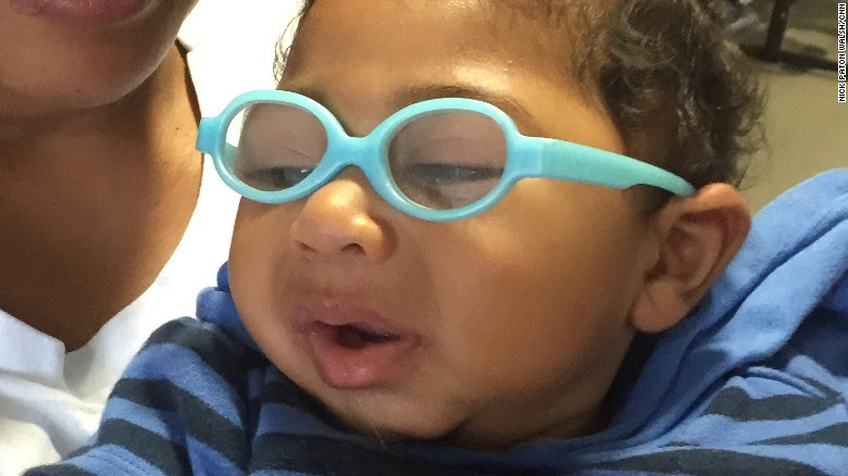Babies born with microcephaly often need to wear glasses to help their vision.