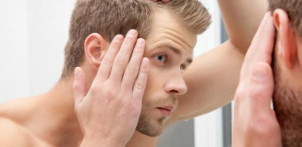 A calvície é um pesadelo para muitos homens, mas também pode ser sinônimo de charme