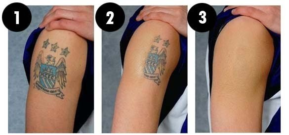 Tattoo Removal Cream For Sale Philippines