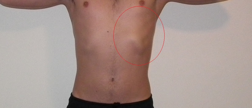 Lump In Stomach Below Left Rib Cage