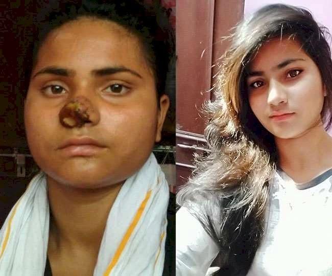 बड़ी बहन ने दांतों से काटी छोटी बहन की नाक, पीड़िता कटा हुआ हिस्सा लेकर पहुंची अस्पताल