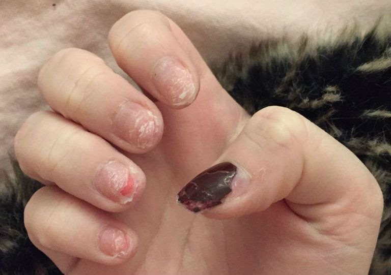 Beauty Blogger Shows The Painful Reality Of Acrylic Nail ...