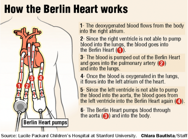 Berlin Heart has 2nd baby on road to recovery | Health and ...