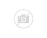 Pictures of Forearm Acute Pain