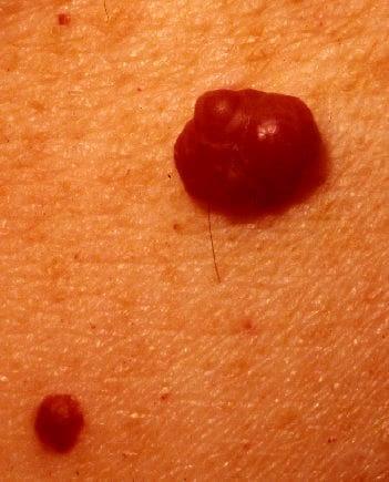 Cause Of Cherry Angioma | Cherry Cherries