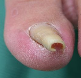 ingrown-nails2.jpg
