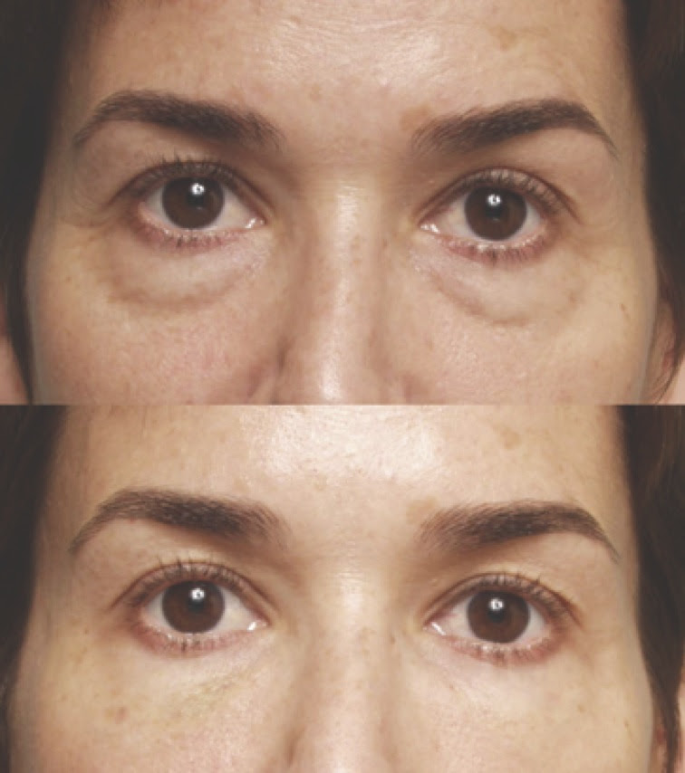 Restylane Beverly Hills & Los Angeles - Under Eye Dark ...