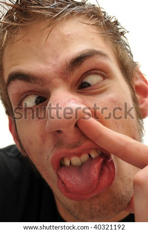 http://image.shutterstock.com/display_pic_with_logo/196033/196033,1257487807,1/stock-photo-crazy-wacky-ugly-man-with-crooked-teeth-and-acne-and-veins-above-his-eyes-to-top-it-off-he-is-40321192.jpg