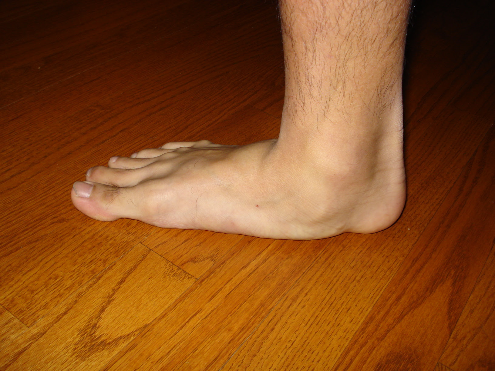 flatfoot2.jpg