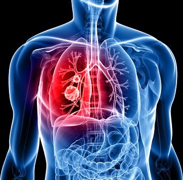 Αποτέλεσμα εικόνας για Τσιγάρο ή υγεία