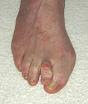 Hammer-toe-picture