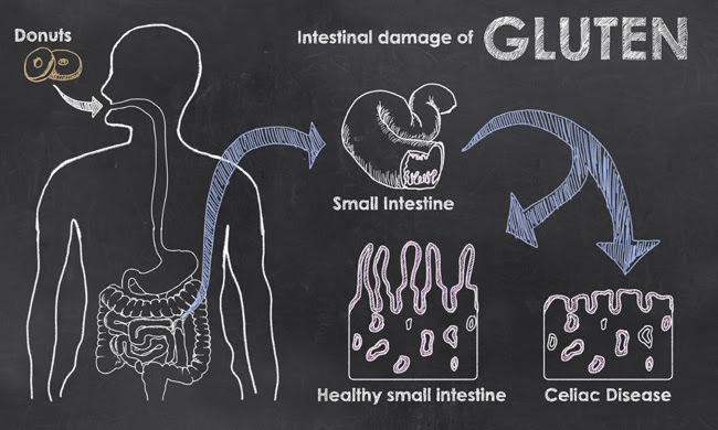 What is Celiac Disease? Symptoms, Diagnosis, and Treatment