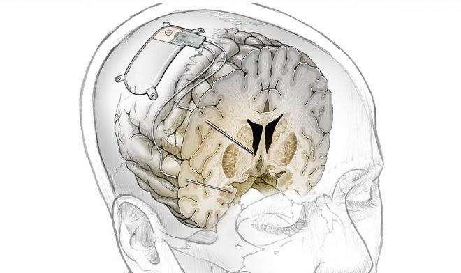 Экспериментальный мозговой имплант мгновенно избавит от неизлечимой депрессии