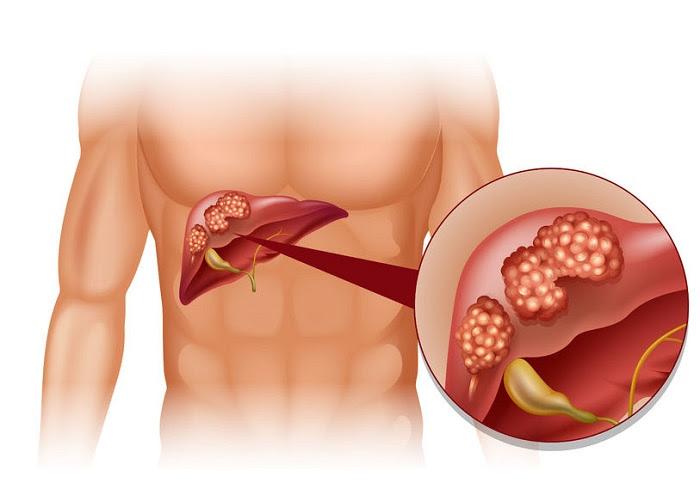 Jugo medicinal con perejil para mejorar el hígado