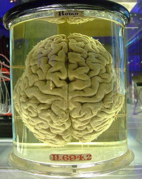 File:Human brain in a vat.jpg