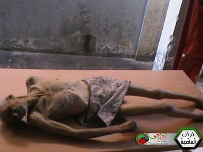Palestinians – and Syrians - in Yarmouk are killed in a myriad of ways, including starvation. (via Social Media)